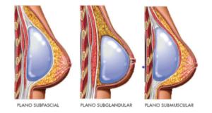 Posição prótese de mama