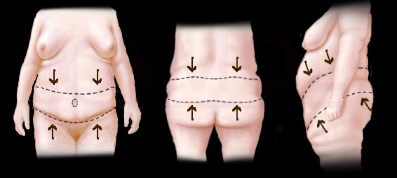 Abdominoplastia 360° Graus