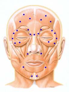 Botox efeito muscular
