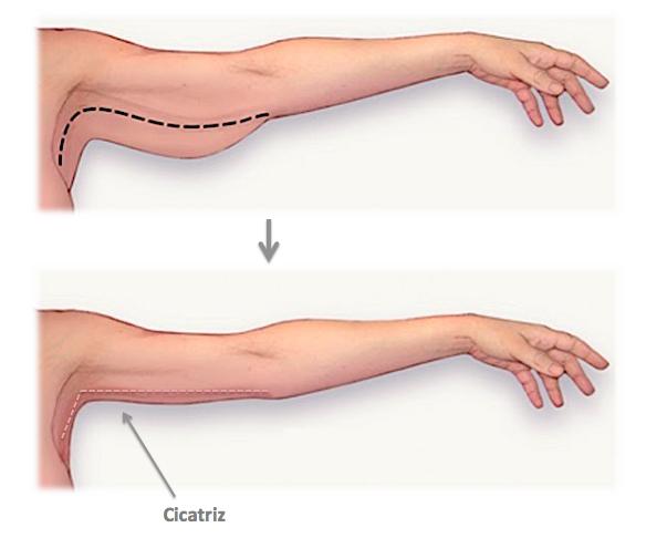 Procedimento Braquioplastia