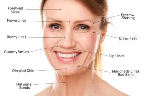 Regiões de Botox